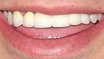 Cosmetic Dentist Grand Rapids