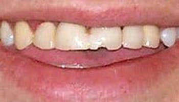 Cosmetic Dentists Grand Rapids MI