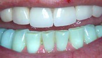 Grand Rapids Cosmetic Dentist