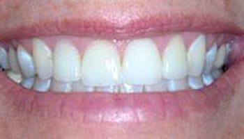 Grand Rapids Restorative Dentists
