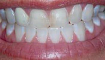 Grand Rapids MI Restorative Dentists