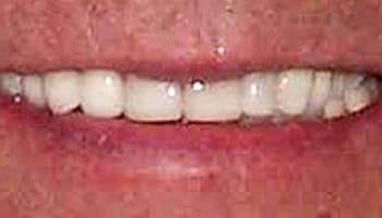 Restorative Dentist Grand Rapids