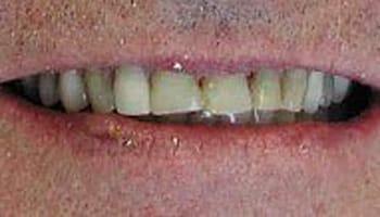Restorative Dentists Grand Rapids
