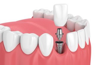 Can you eat normally with dental implants, Grand Rapids MI